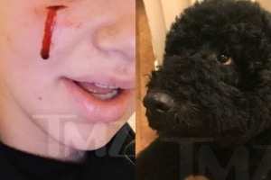 presidential_dog_bite_sunny_injures-5a691f3bd22dead926d4495c0f80f9df